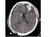 Desvio da linha média automatizada e Estimativa Pressão Intracraniana com base em imagens do cérebro CT thumbnail