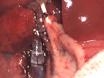 쥐에게 Orthotopic 간 이식 thumbnail