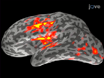 Mapping Cortical Dynamics Using Simultaneous MEG/EEG and Anatomically-constrained Minimum-norm Estimates: an Auditory Attention Example thumbnail