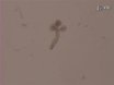 שינוי ורקומבינציה גנטי של תרבויות איברי בלוטות רוק thumbnail