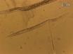 A <em>Caenorhabditis elegans</em> Model System for Amylopathy Study thumbnail