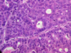 Generation of Subcutaneous and Intrahepatic Human Hepatocellular Carcinoma Xenografts in Immunodeficient Mice thumbnail