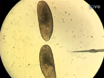 创伤显微注射和分析<em&gt;在体内</em&gt;表皮的伤口本地化响应记者在<em&gt;果蝇</em&gt;胚胎。 thumbnail