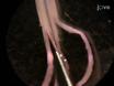 Cultuur van Geïsoleerde Vloerplaat Tissue en productie van geconditioneerd medium om functionele eigenschappen van Floor-plaat uitgebracht Signalen Assess thumbnail