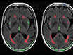 Lesion Explorer: A Video-guided, Standardized Protocol for Accurate and Reliable MRI-derived Volumetrics in Alzheimer's Disease and Normal Elderly thumbnail