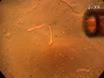 कैल्शियम का आकलन बरकरार कंकाल की मांसपेशी फाइबर में स्पार्क्स thumbnail