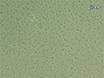 Capsular Serotypningen av<em&gt; Streptococcus pneumoniae</em&gt; Använda Quellung Reaction thumbnail