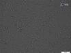Meme Kanseri Hücrelerinde östrojen düzenlenmiş microRNA profil thumbnail