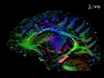 Developing Neuroimaging Phenotypes of the Default Mode Network in PTSD: Integrating the Resting State, Working Memory, and Structural Connectivity thumbnail