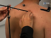 Measurement of Dynamic Scapular Kinematics Using an Acromion Marker Cluster to Minimize Skin Movement Artifact thumbnail