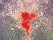 분리 및 인간의 농축 향상된 골 연장술에 대한 기질 세포를 지방이 유래 thumbnail