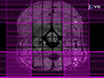 Diffusion Imaging in the Rat Cervical Spinal Cord thumbnail
