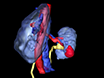 <em>Na Vivo,</em> percutânea, Agulha Based, Tomografia de Coerência Óptica de massas renais thumbnail