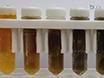 <em>Ex Situ</em> Normotérmica máquina de perfusión de hígados de donantes thumbnail