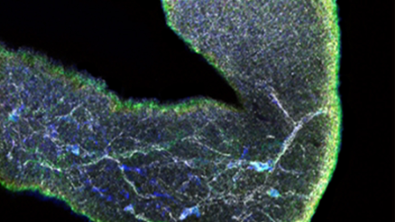 Immunostaining to Visualize Murine Enteric Nervous System Development