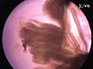 L'isolement et la caractérisation des cellules satellites de Muscles Rat chef Branchiomeric thumbnail