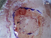 Triggering Reactive Gliosis <em>In Vivo</em> by a Forebrain Stab Injury thumbnail