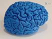 인간 Subcortex의 고해상도 구조 자기 공명 영상<I&gt; 생체</I&gt; 및 사후 thumbnail