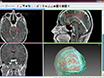 En rörledning för 3D Multimodalitet Image Integration och Datorstödd planering i epilepsikirurgi thumbnail