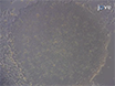 प्रेरित pluripotent स्टेम तंतुकोशिका-तरह Synoviocytes का उपयोग कोशिकाओं की पीढ़ी रुमेटी गठिया के रोगियों के जोड़ों से पृथक thumbnail