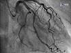 冠状动脉内乙酰胆碱激发试验冠状动脉的血管收缩评估疾病 thumbnail