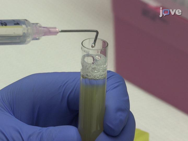 Isolatie van lipoproteïnen met hoge dichtheid voor niet-coderende RNA kwantificering Klein thumbnail