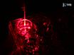 肺癌標的化ナノ粒子と光線力学療法の抗がん効能 thumbnail