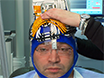 How to Use the H1 Deep Transcranial Magnetic Stimulation Coil for Conditions Other than Depression thumbnail