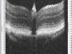 Ultrahigh Resolution Mouse Optical Coherence Tomography to Aid Intraocular Injection in Retinal Gene Therapy Research thumbnail