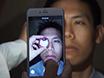 Smartphone Fundus Photography thumbnail
