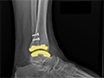 Traitement de l'arthrose de la cheville avec remplacement Total de cheville grâce à une approche latérale de la Transfibular thumbnail