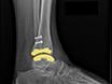 外侧 Transfibular 法治疗踝关节骨性关节炎 thumbnail