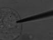 Мониторинг влияние осмотического стресса на секреторные пузырьки и экзоцитоз thumbnail