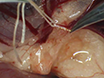 A Rat Model of Mild Intrauterine Hypoperfusion with Microcoil Stenosis thumbnail