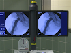 Tige-positionnement individualisé en guidage Calcar courte tige arthroplastie totale thumbnail