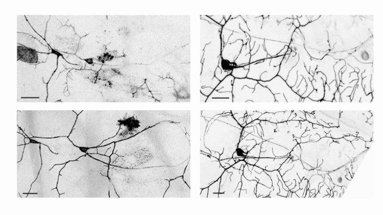 A <em>Drosophila In Vivo</em> Injury Model for Studying Neuroregeneration in the Peripheral and Central Nervous System