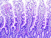 Subcellular Fractionation from Fresh and Frozen Gastrointestinal Specimens thumbnail