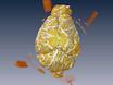 अवजालतनिका नकसीर के एक Murine मॉडल में सेरेब्रल Vasospasm के ठहराव के लिए एक Volumetric विधि thumbnail