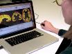 Автоматизированный сегментация коркового серого вещества от T1-взвешенный МРТ изображения thumbnail