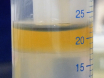 İki-fluorochrome tarafından yedi bağışıklık hücre alt kümeleri ayrımcılık Akış Sitometresi thumbnail