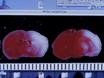 Den hypoxisk ischemisk encefalopati Modell av perinatal Ischemi thumbnail