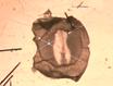 Chick Tüm Dağı Antikor Boyama Yöntemi thumbnail